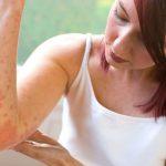 Методы лечения псориаза на нервной почве