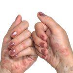 Псориаз на руках на начальной стадии: фото и симптомы